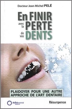 En finir avec la perte de vos dents